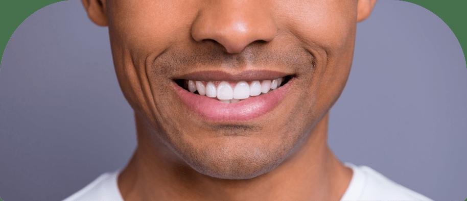 black man with white teeth
