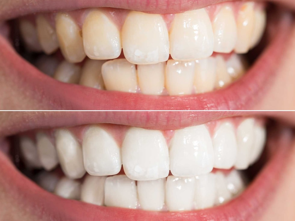 teeth whitening before and after view