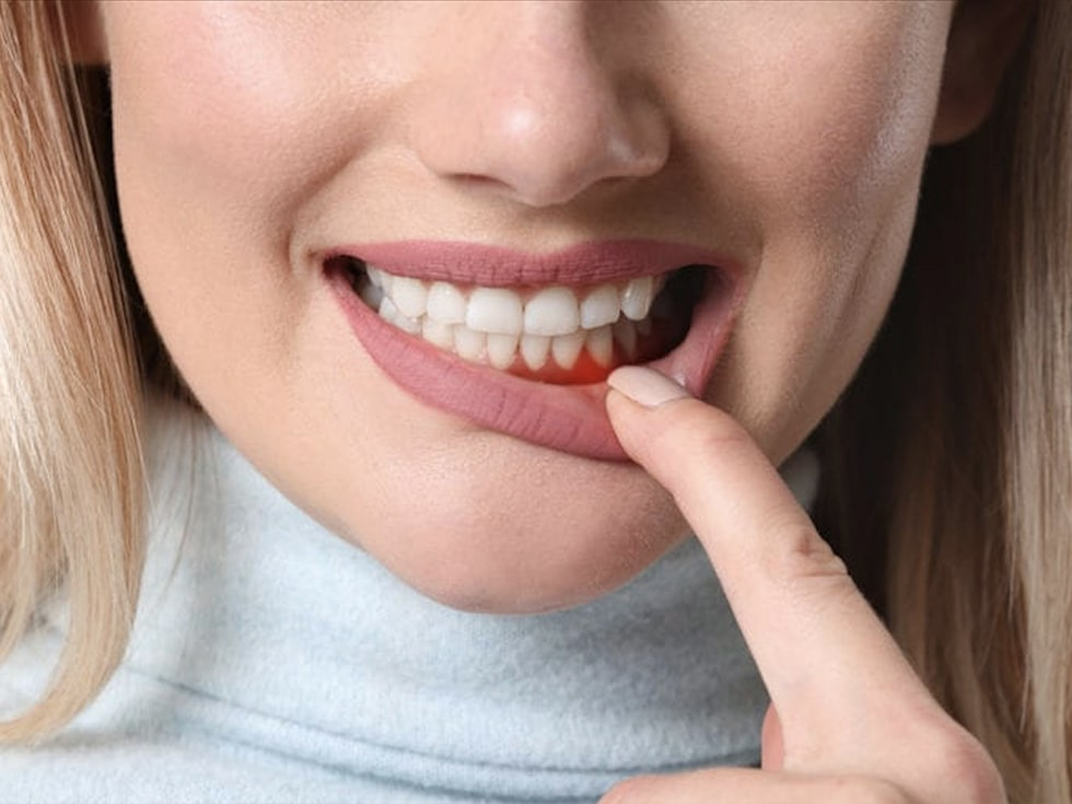 woman showing her gums